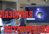 """Лазерная литотрепсия в """"Эндохирургическом центре"""""""
